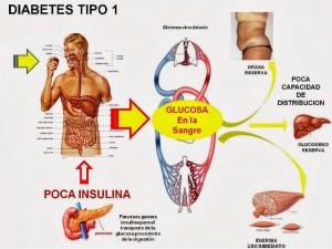 diabetes causas y sintomas