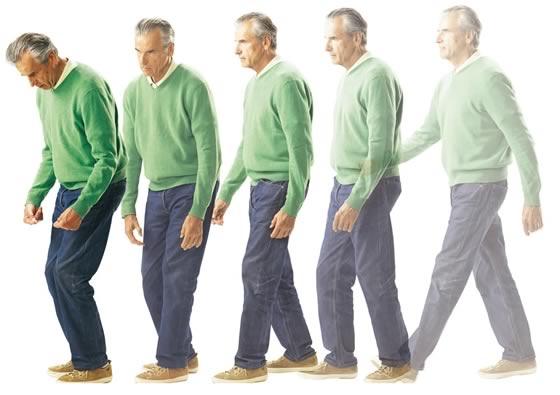 Enfermedad del Parkinson. Objetivos de la terapia ocupacional